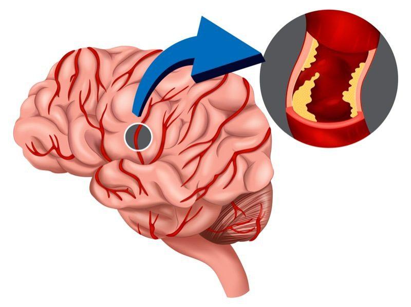 زوال عقل عروقی / vascular dementia
