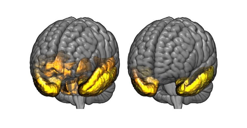 زوال عقل / dementia