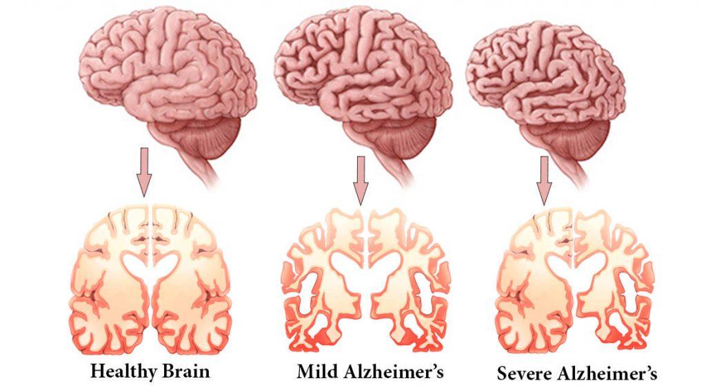 بیماری آلزایمر / Alzheimer