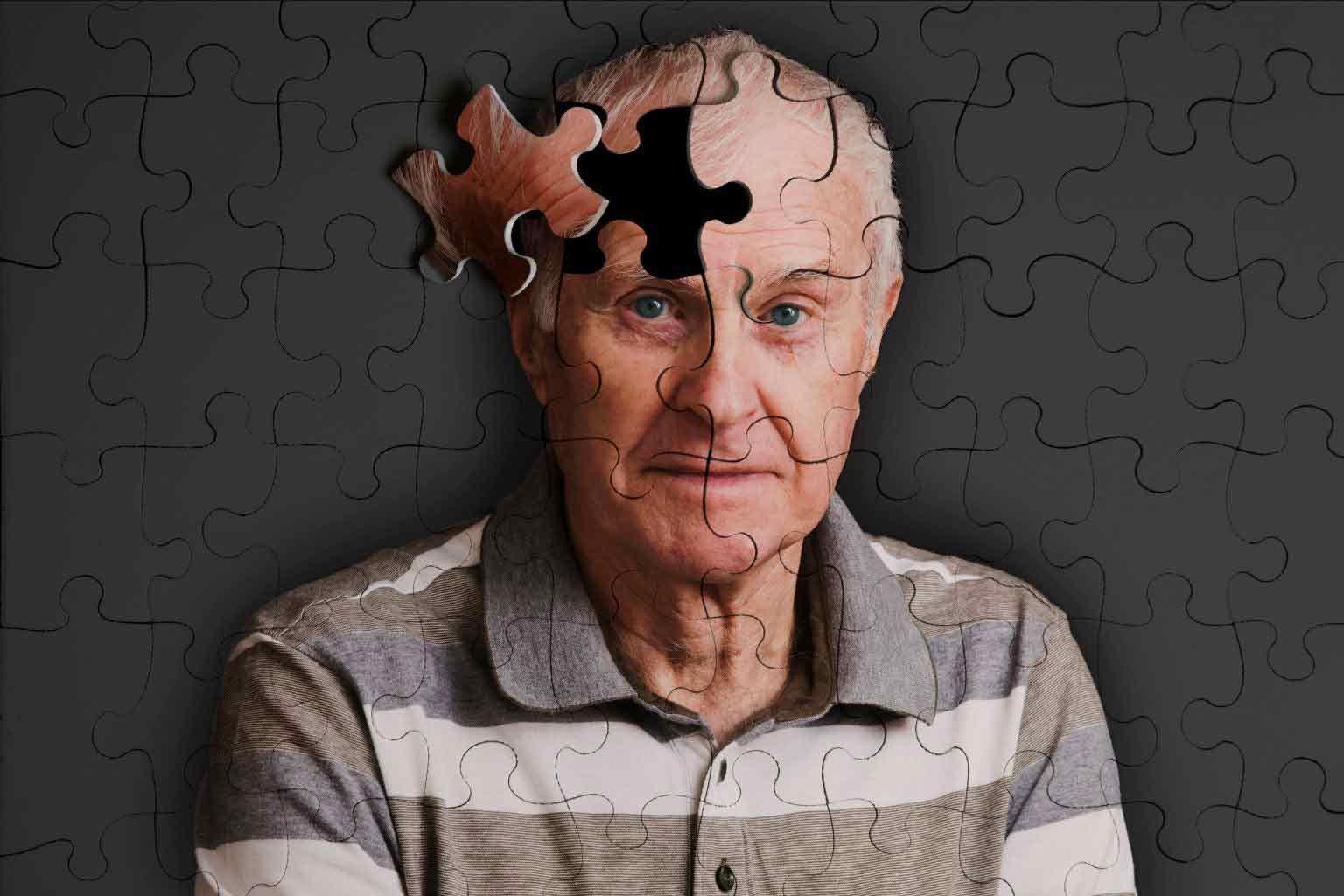 آلزایمر /  Alzheimer