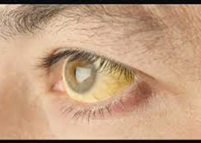 زردی چشم در اثر هپاتیت